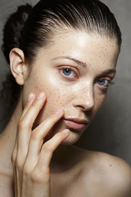 Spring/ Summer 2015 Runway Beauty Trends: Freckled Skin
